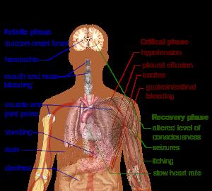 300px-Dengue_fever_symptoms.svg