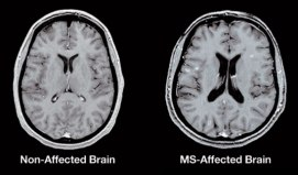 MS-MRI_gadolinium_535x314-01