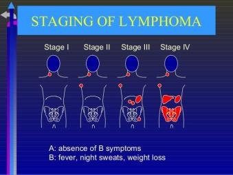 10lymphoma-final-year-8-638