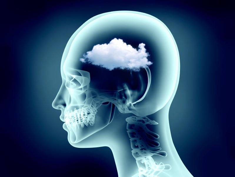 Brain-Fog-Clouds-in-Xray-head